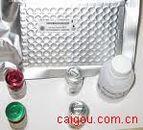 抗着丝点抗体(Centromere Ab) Elisa kit