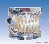 3岁标准乳牙模型