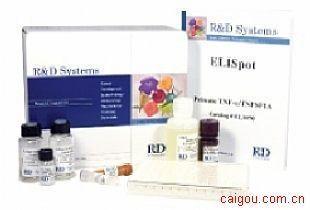 小鼠可溶性血管内皮细胞蛋白C受体Elisa试剂盒,sEPCR试剂盒