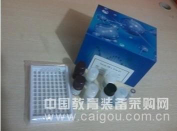 人丙氨酸转氨酶/谷丙转氨酶(ALT/GPT)酶联免疫试剂盒