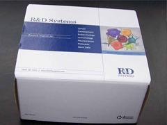 人甲状腺过氧化物酶(TPO)ELISA试剂盒