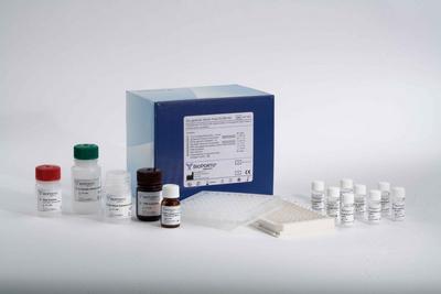脑钠尿肽     BNP