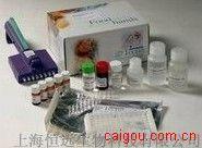 人颗粒酶B ELISA试剂盒