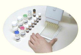 小鼠β内酰胺酶抑制剂ELISA试剂盒