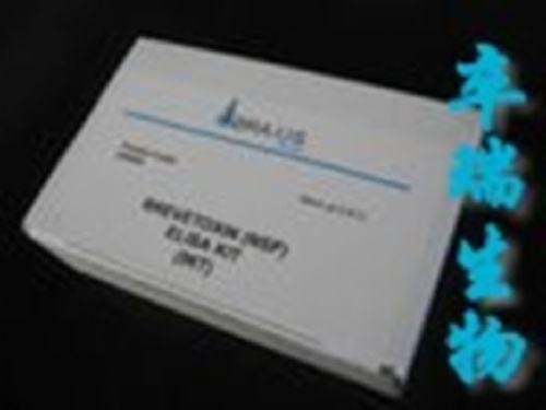 人肿瘤坏死因子相关凋亡诱导配体3(TRAIL-R3)Elisa试剂盒