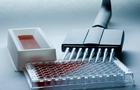 大鼠结缔组织生长因子(CTGF)ELISA试剂盒有哪些方法