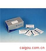 人TM,血栓调节蛋白Elisa试剂盒