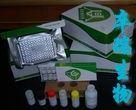 小鼠抗心磷脂抗体IgG(ACA-IgG)Elisa试剂盒