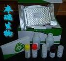 人抗胰蛋白酶(AT)Elisa试剂盒