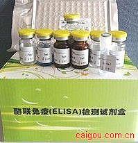 人抗中性粒细胞颗粒抗体(ANGA)ELISA Kit