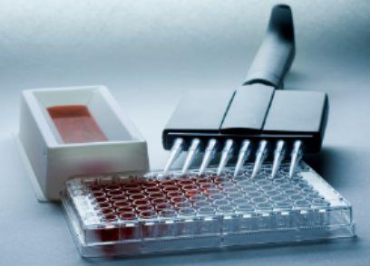 人胸肾表达趋化因子试剂盒