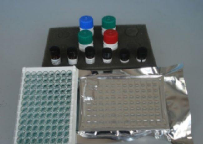 人蛋白S(Protein S)ELISA试剂盒
