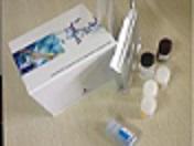 代测兔子巨噬细胞炎性蛋白5(MIP-5)ELISA试剂盒价格