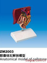 胆囊结石模型
